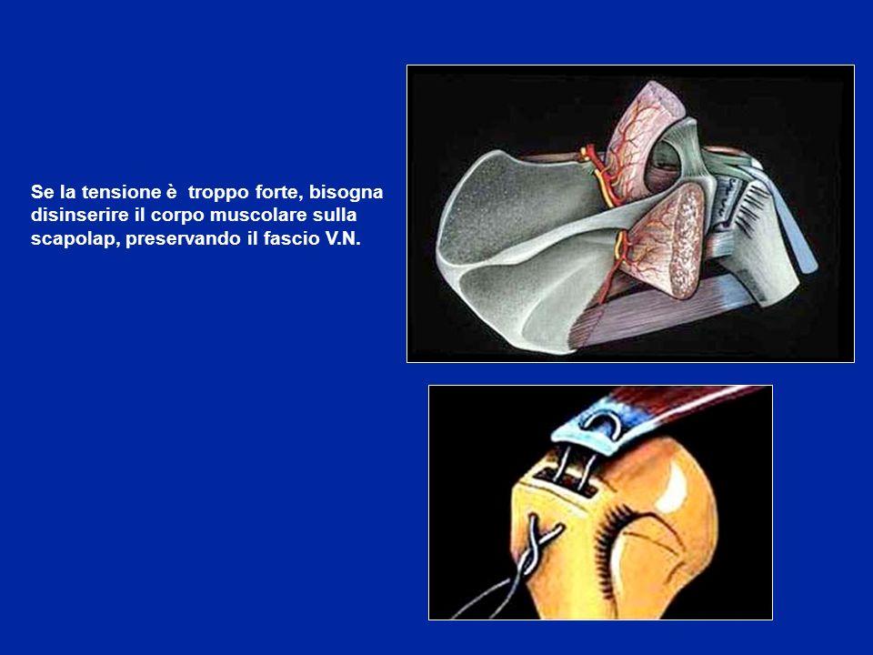 Se la tensione è troppo forte, bisogna disinserire il corpo muscolare sulla scapolap, preservando il fascio V.N.