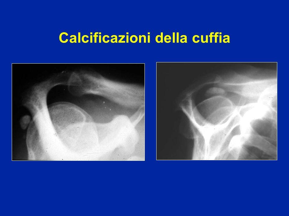 Calcificazioni della cuffia