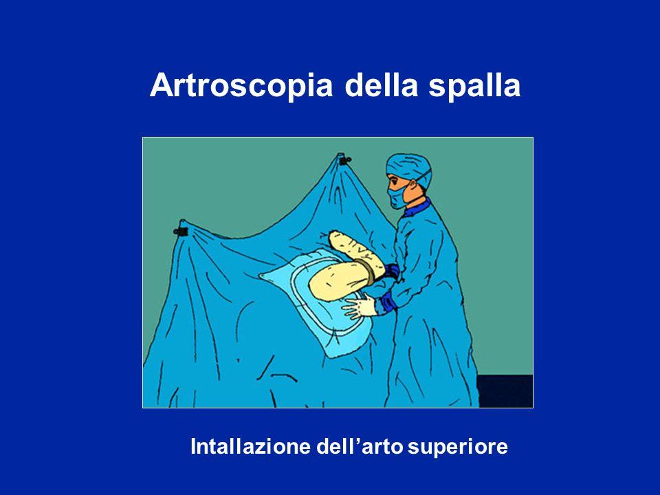 Artroscopia della spalla Intallazione dell'arto superiore