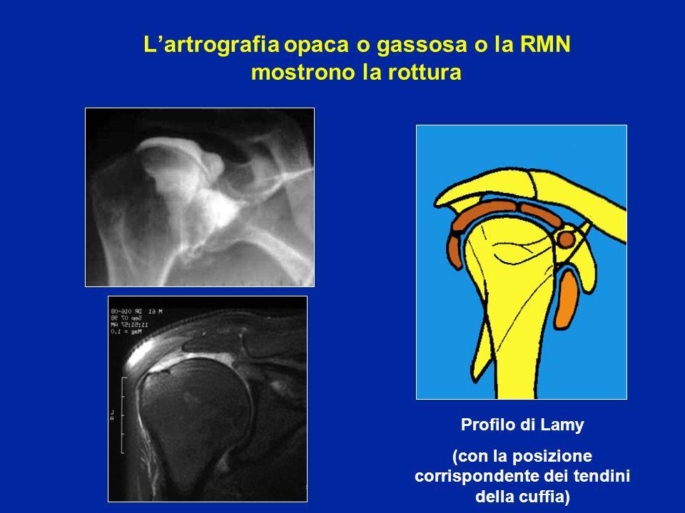 L'artrografia opaca o gassosa o la RMN mostrono la rottura