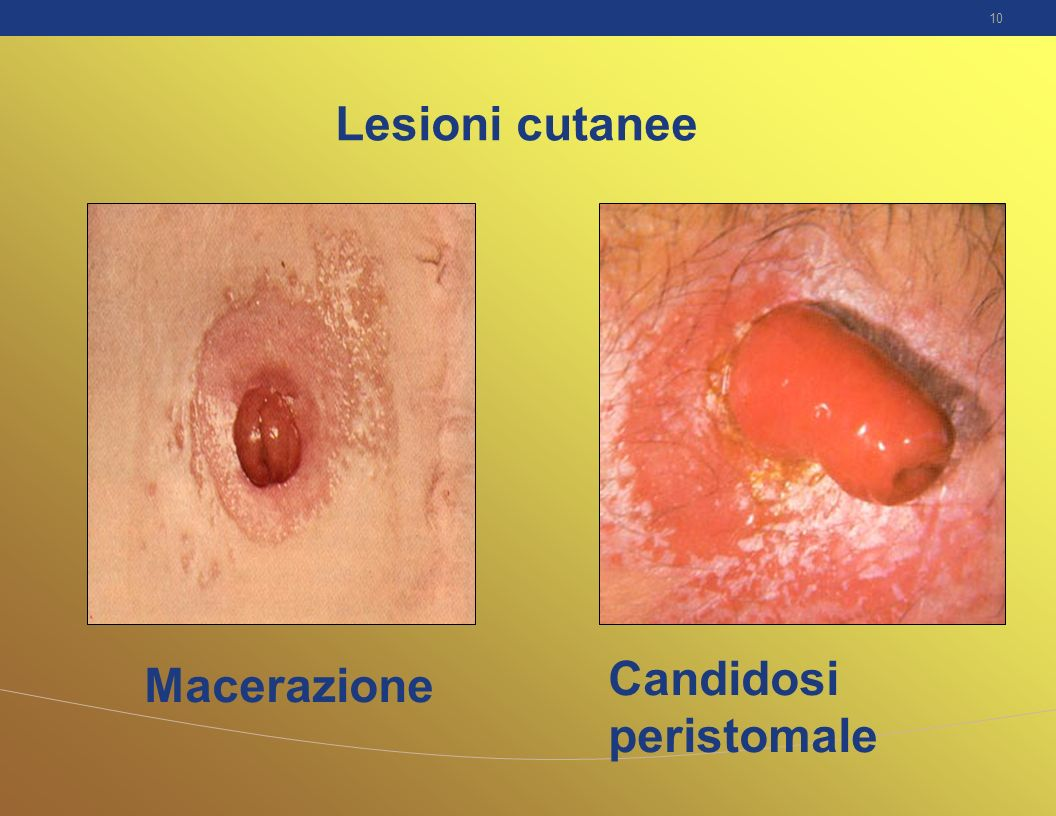 Candidosi peristomale Macerazione