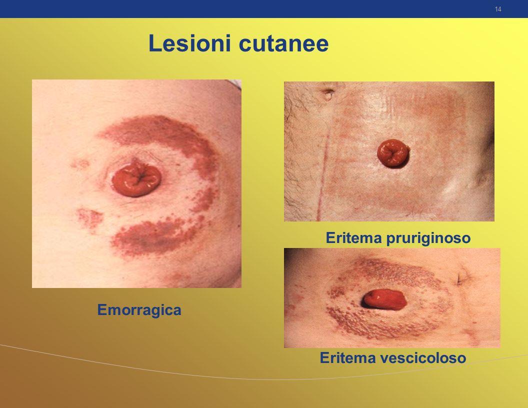 Lesioni cutanee Eritema pruriginoso Emorragica Eritema vescicoloso
