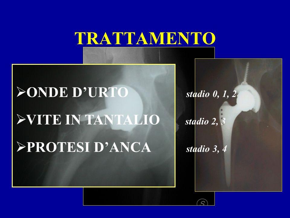 TRATTAMENTO ONDE D'URTO stadio 0, 1, 2 VITE IN TANTALIO stadio 2, 3