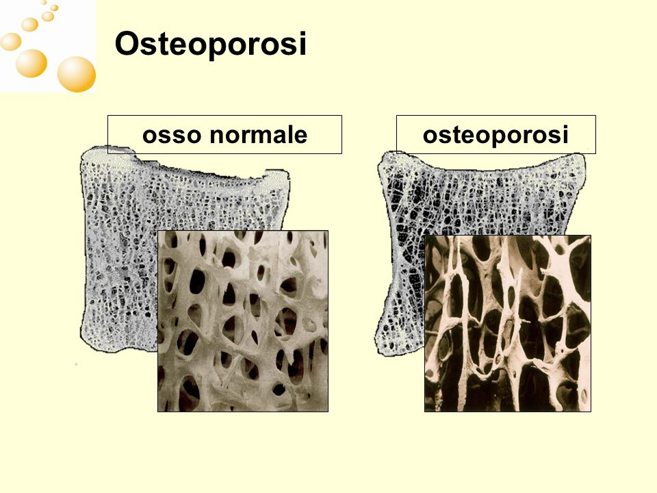 Osteoporosi osso normale osteoporosi
