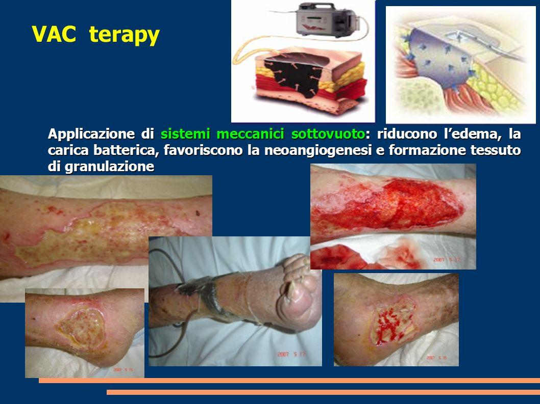 VAC terapy