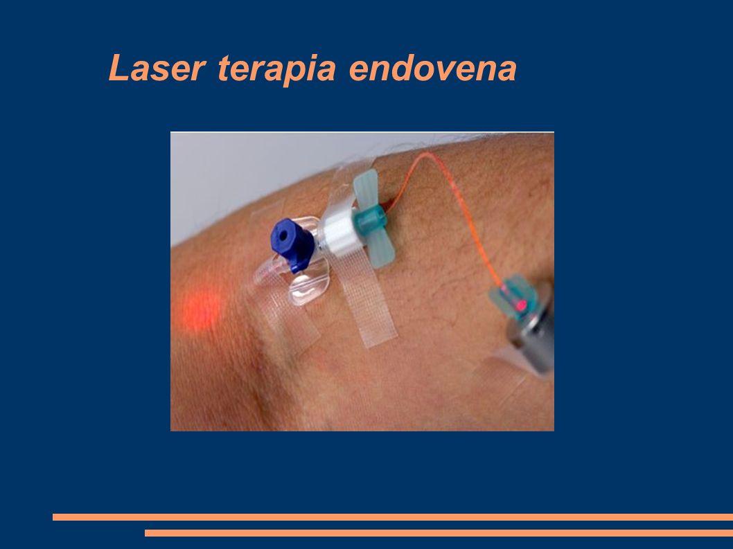 Laser terapia endovena