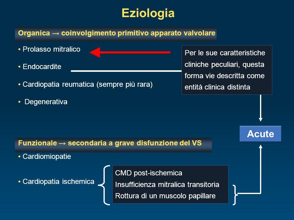 Eziologia Acute Organica → coinvolgimento primitivo apparato valvolare