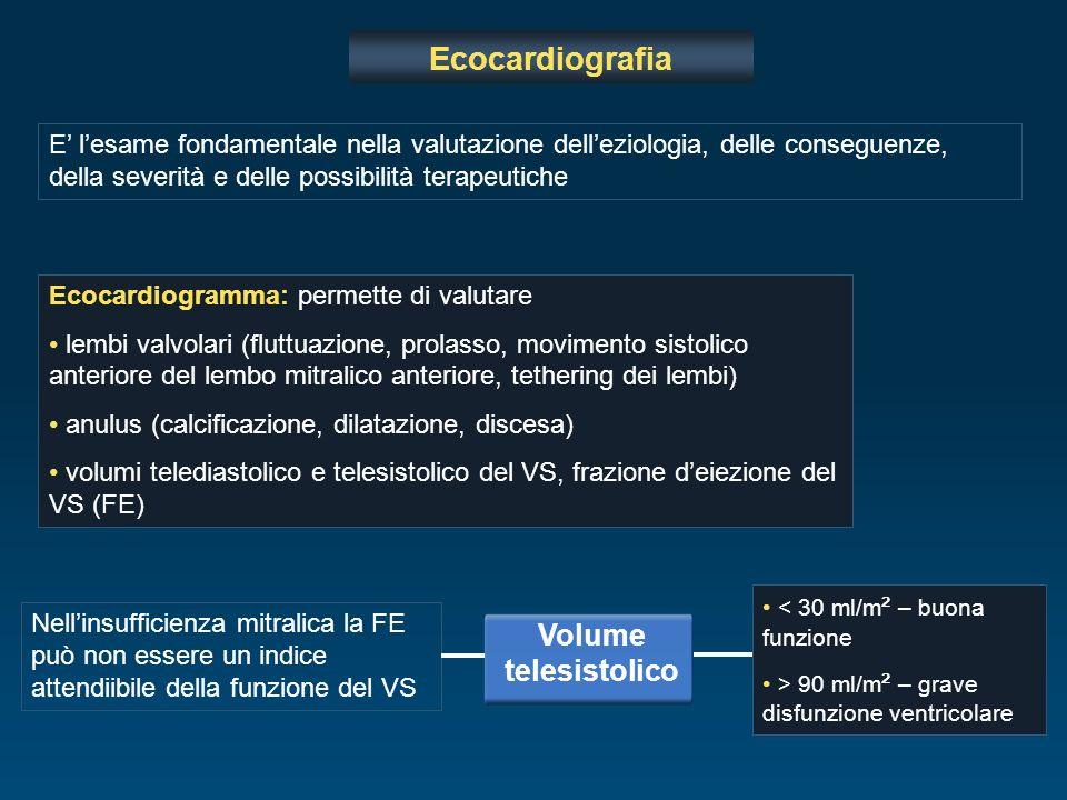 Ecocardiografia Volume telesistolico