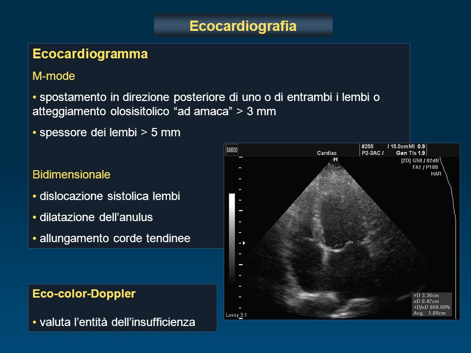 Ecocardiografia Ecocardiogramma M-mode