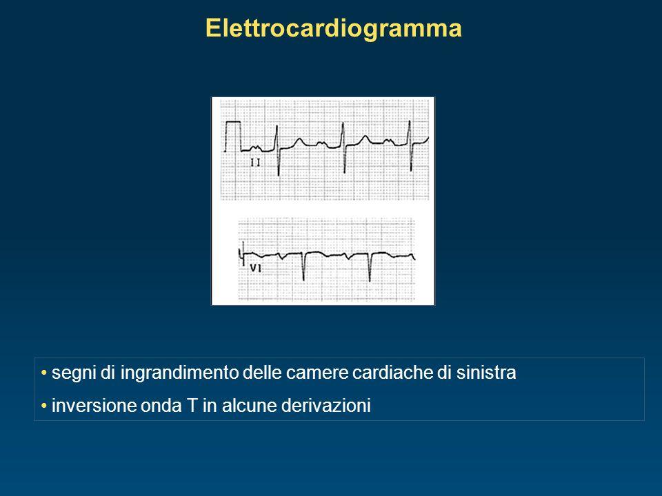 Elettrocardiogrammasegni di ingrandimento delle camere cardiache di sinistra.