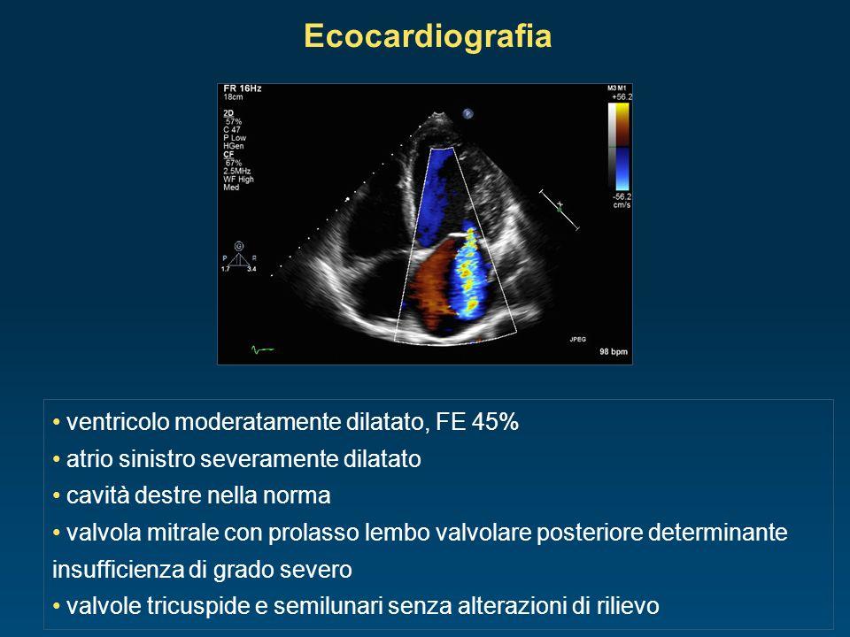 Ecocardiografia ventricolo moderatamente dilatato, FE 45%