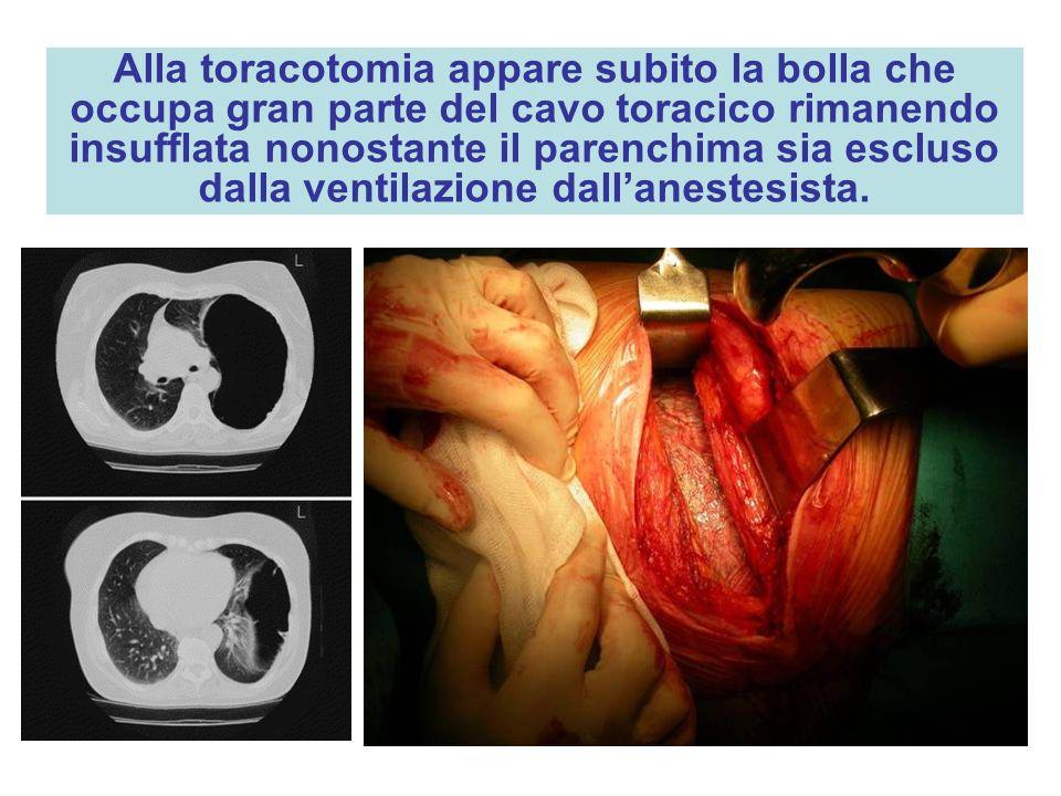 Alla toracotomia appare subito la bolla che occupa gran parte del cavo toracico rimanendo insufflata nonostante il parenchima sia escluso dalla ventilazione dall'anestesista.