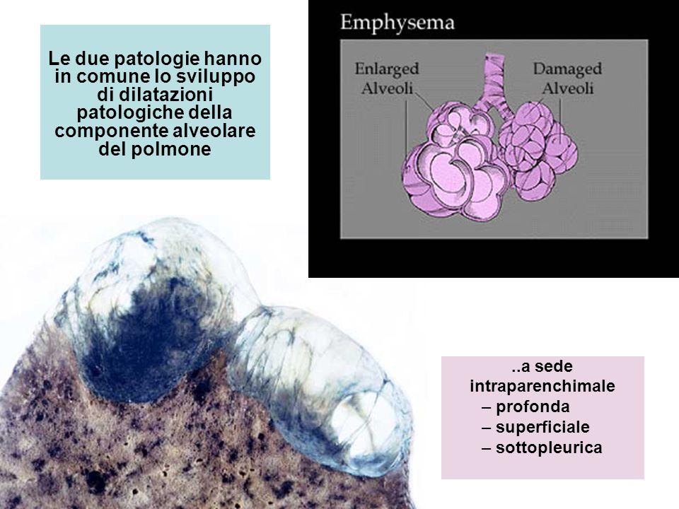 Le due patologie hanno in comune lo sviluppo di dilatazioni patologiche della componente alveolare del polmone