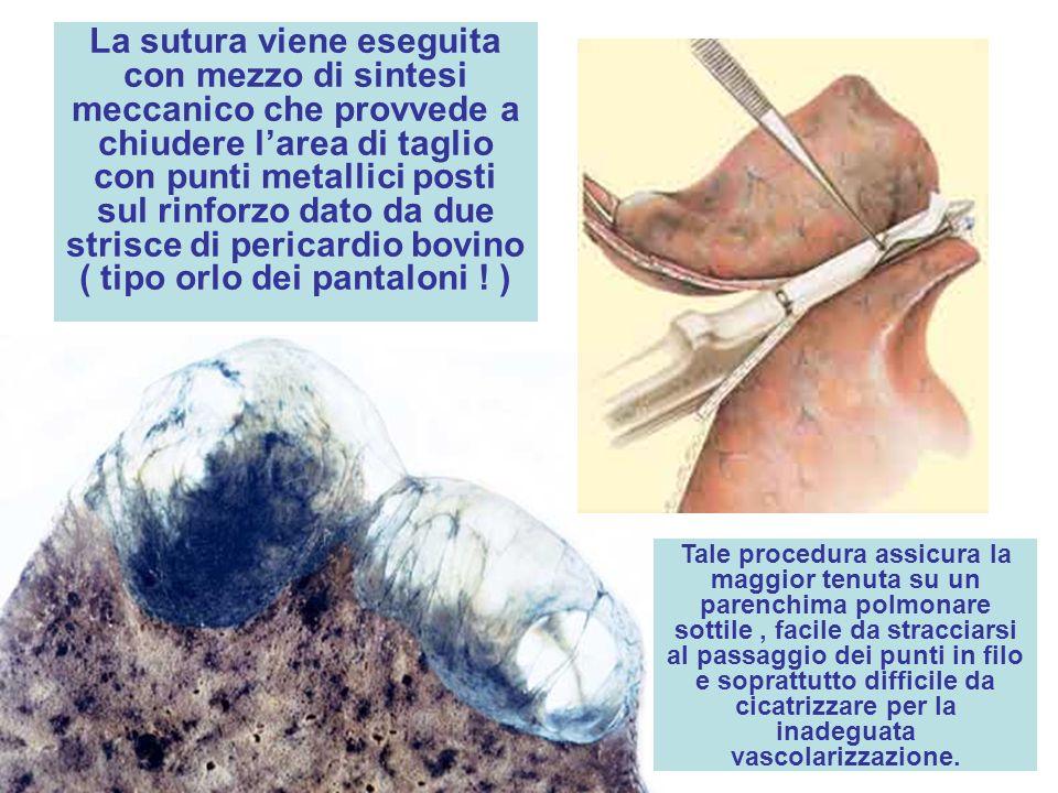 La sutura viene eseguita con mezzo di sintesi meccanico che provvede a chiudere l'area di taglio con punti metallici posti sul rinforzo dato da due strisce di pericardio bovino ( tipo orlo dei pantaloni ! )