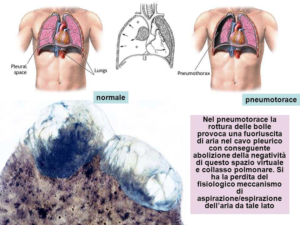 normale pneumotorace.