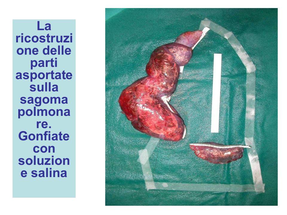 La ricostruzione delle parti asportate sulla sagoma polmonare