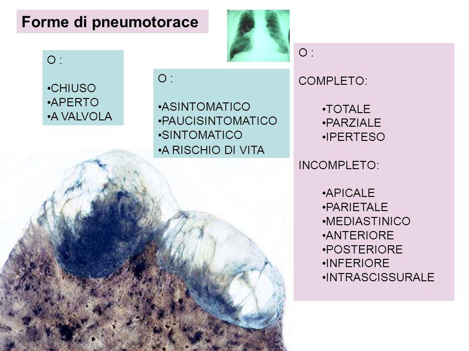 Forme di pneumotorace O : COMPLETO: TOTALE PARZIALE IPERTESO
