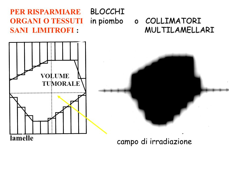 in piombo o COLLIMATORI MULTILAMELLARI