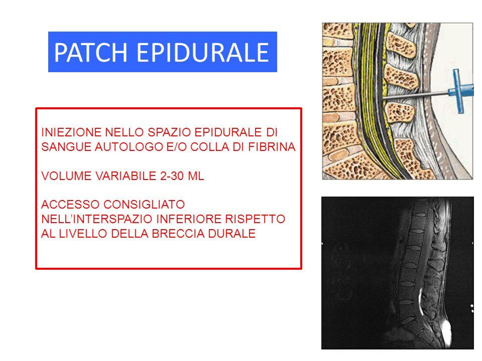 PATCH EPIDURALE INIEZIONE NELLO SPAZIO EPIDURALE DI SANGUE AUTOLOGO E/O COLLA DI FIBRINA. VOLUME VARIABILE 2-30 ML.