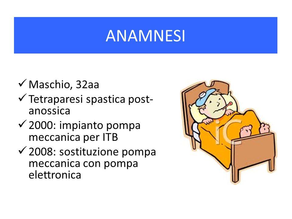 ANAMNESI Maschio, 32aa Tetraparesi spastica post-anossica