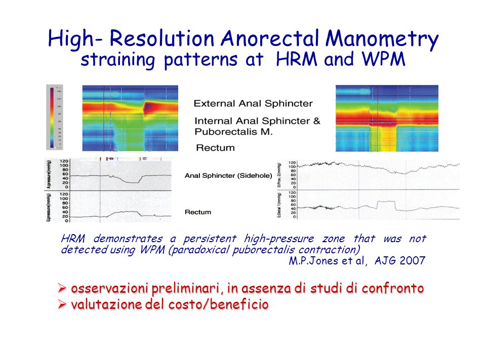 High- Resolution Anorectal Manometry straining patterns at HRM and WPM