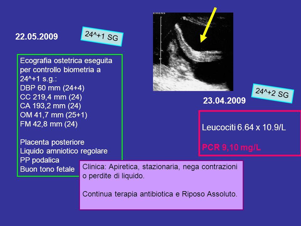 22.05.2009 23.04.2009 Leucociti 6.64 x 10.9/L PCR 9,10 mg/L 24^+1 SG