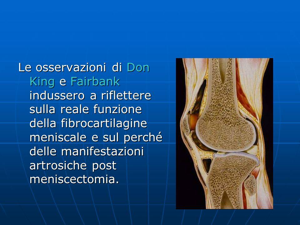 Le osservazioni di Don King e Fairbank indussero a riflettere sulla reale funzione della fibrocartilagine meniscale e sul perché delle manifestazioni artrosiche post meniscectomia.