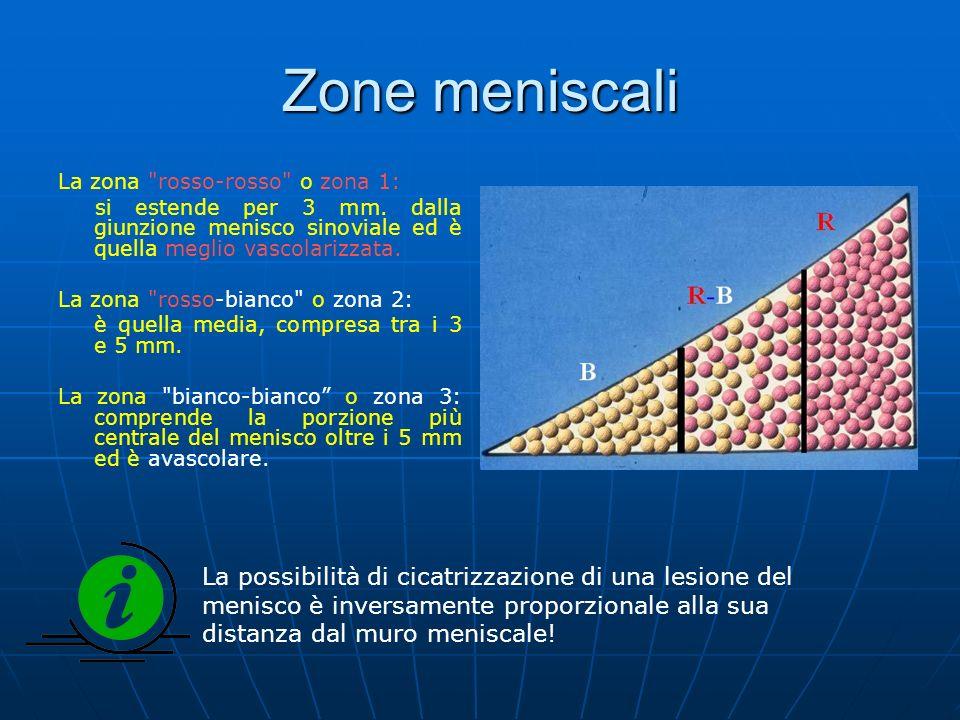 Zone meniscali La zona rosso-rosso o zona 1: si estende per 3 mm. dalla giunzione menisco sinoviale ed è quella meglio vascolarizzata.