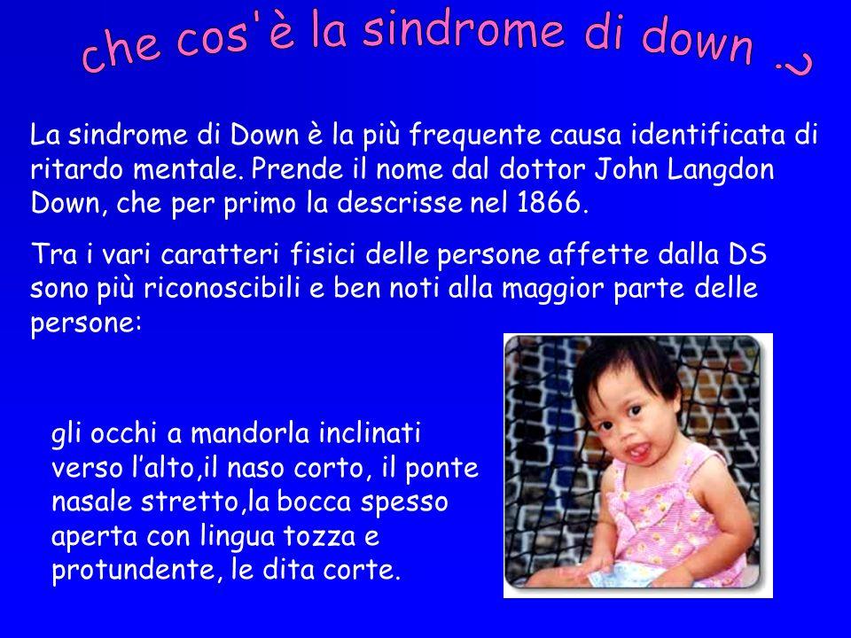 che cos è la sindrome di down