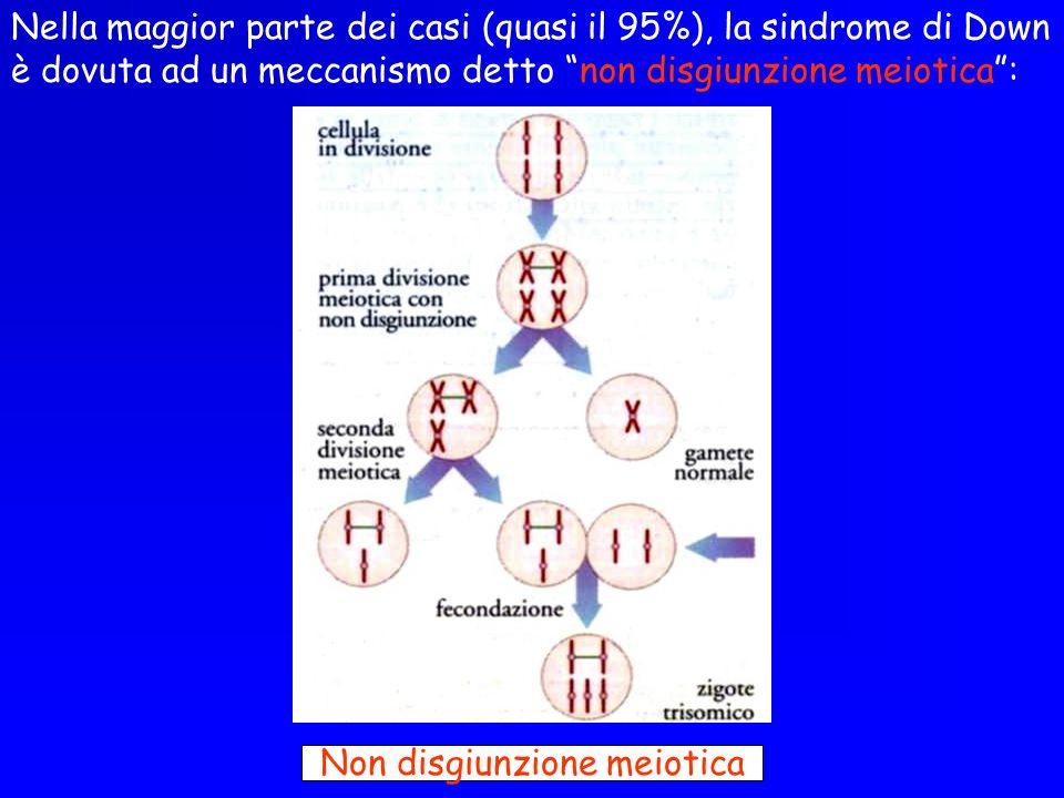 Non disgiunzione meiotica
