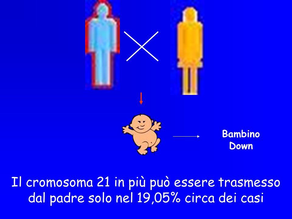 Bambino Down Il cromosoma 21 in più può essere trasmesso dal padre solo nel 19,05% circa dei casi