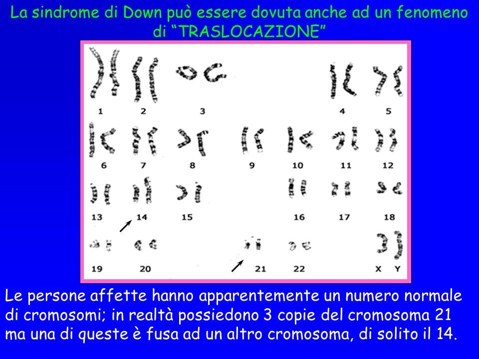 La sindrome di Down può essere dovuta anche ad un fenomeno di TRASLOCAZIONE