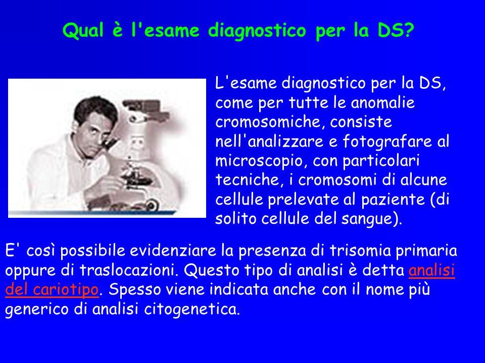 Qual è l esame diagnostico per la DS