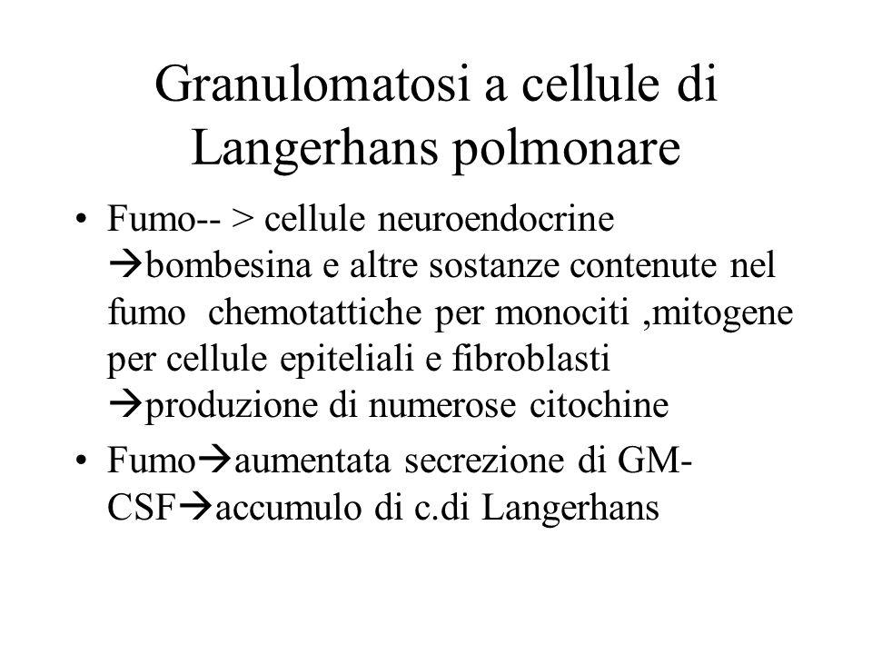 Granulomatosi a cellule di Langerhans polmonare