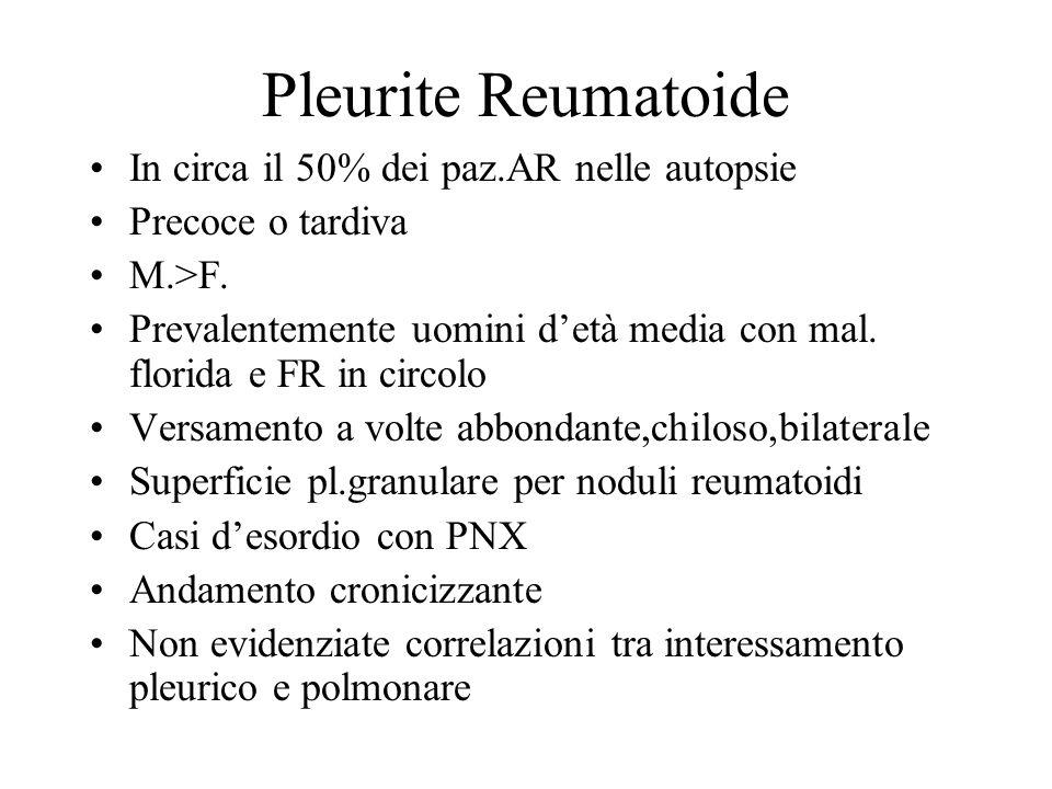 Pleurite Reumatoide In circa il 50% dei paz.AR nelle autopsie