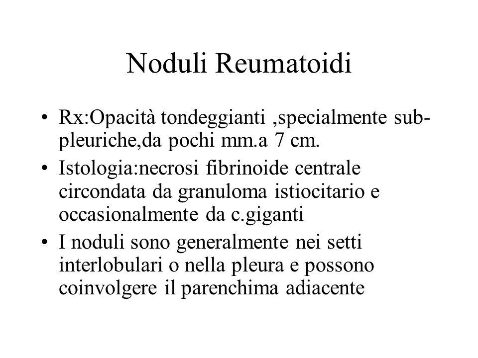 Noduli Reumatoidi Rx:Opacità tondeggianti ,specialmente sub-pleuriche,da pochi mm.a 7 cm.