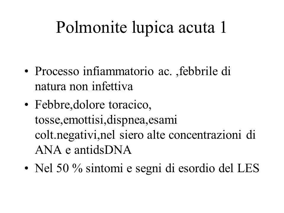 Polmonite lupica acuta 1