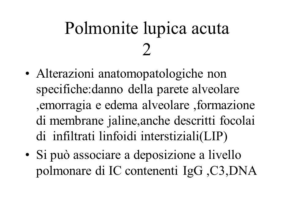 Polmonite lupica acuta 2