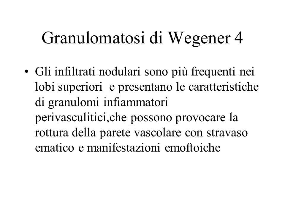 Granulomatosi di Wegener 4