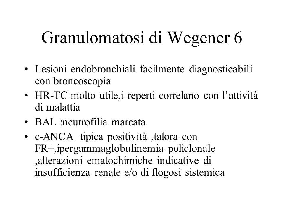 Granulomatosi di Wegener 6
