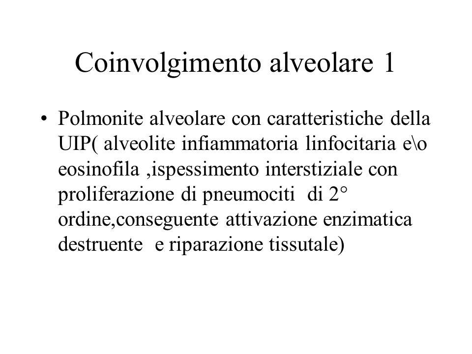 Coinvolgimento alveolare 1