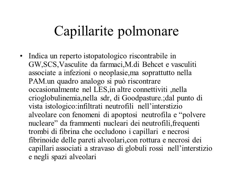 Capillarite polmonare