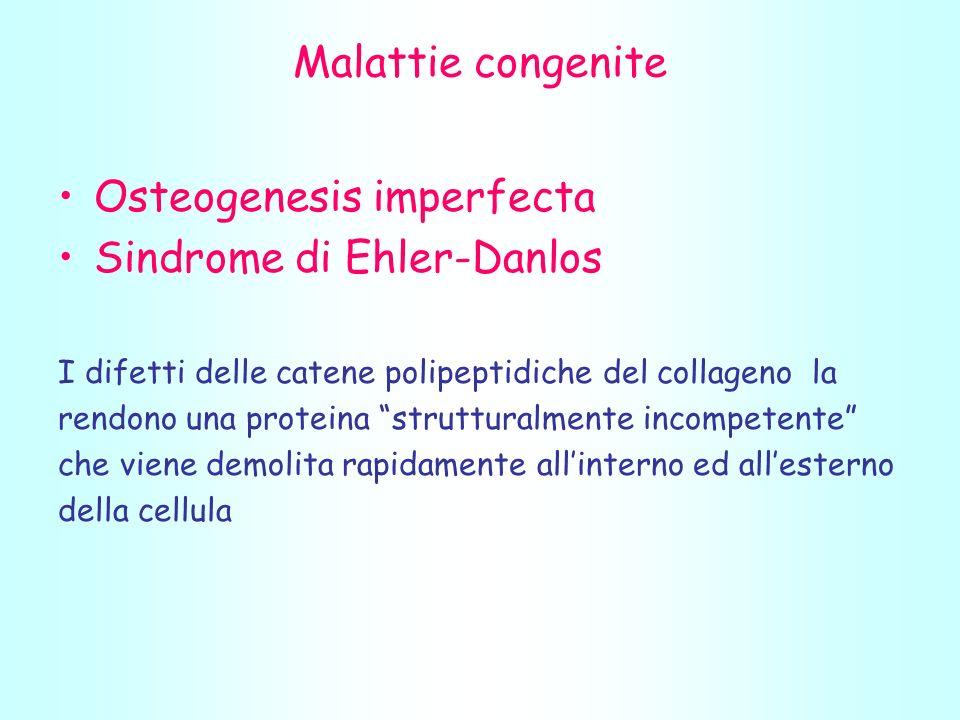 Osteogenesis imperfecta Sindrome di Ehler-Danlos
