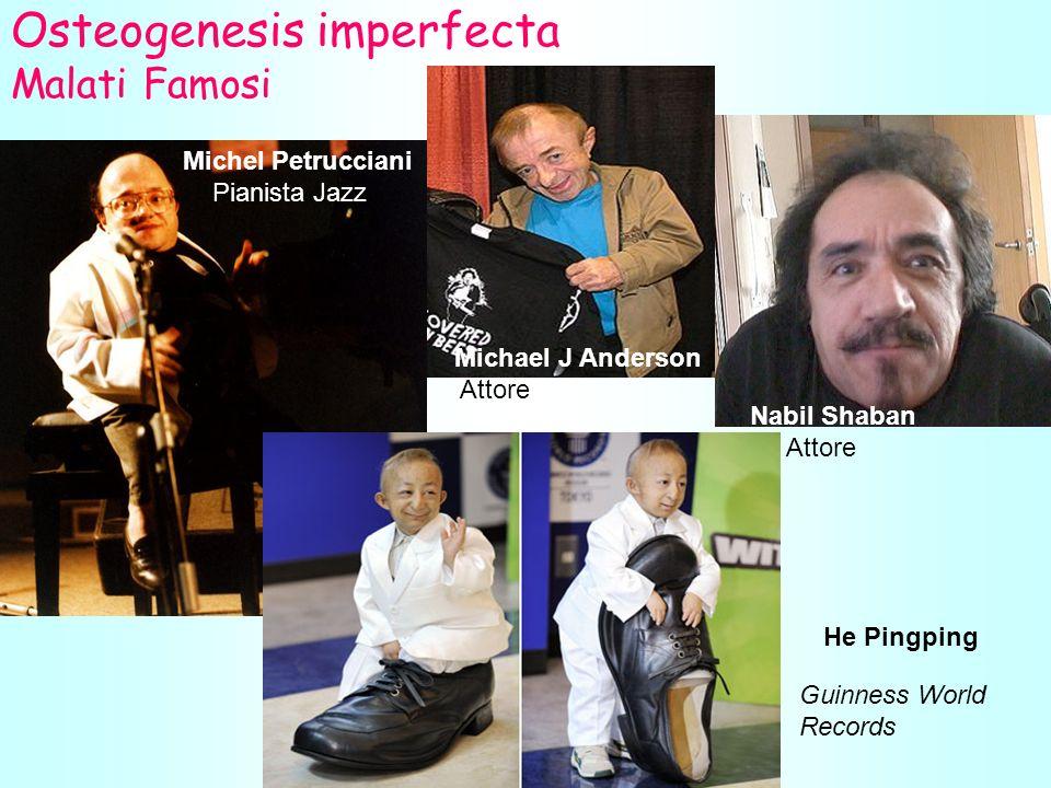 Osteogenesis imperfecta Malati Famosi