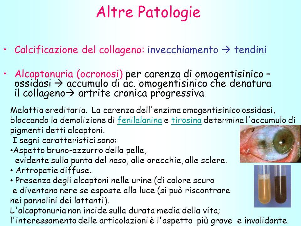 Altre Patologie Calcificazione del collageno: invecchiamento  tendini