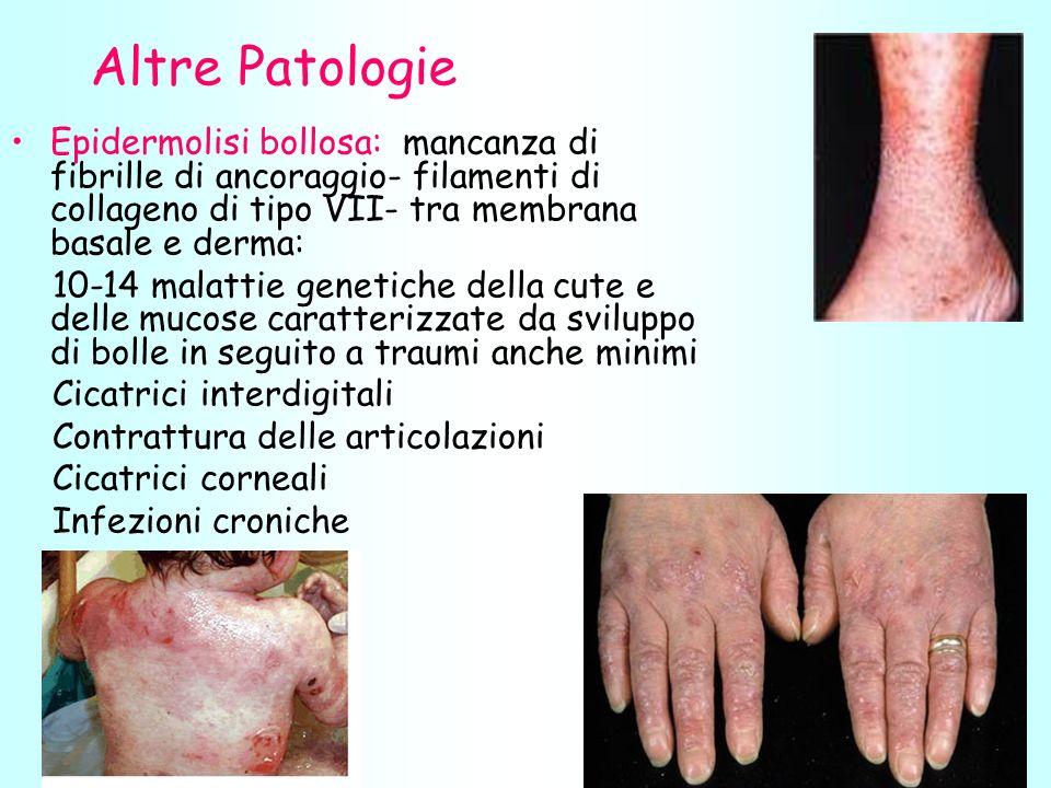 Altre Patologie Epidermolisi bollosa: mancanza di fibrille di ancoraggio- filamenti di collageno di tipo VII- tra membrana basale e derma: