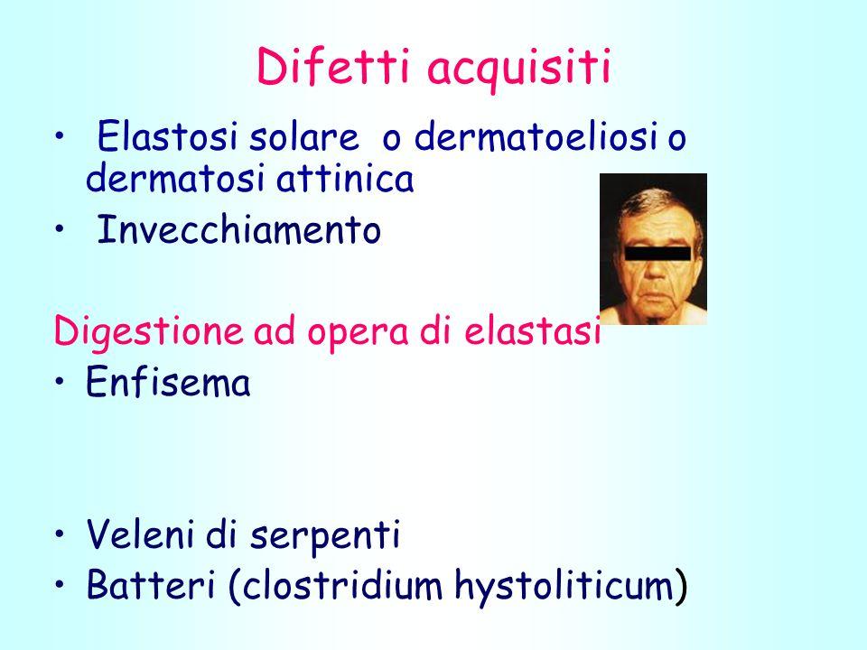 Difetti acquisiti Elastosi solare o dermatoeliosi o dermatosi attinica