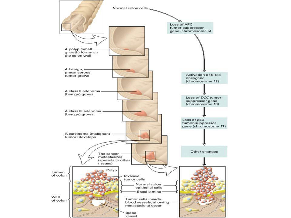 Sviluppo e metastasi del Ca colorettale cancer e basi genetiche