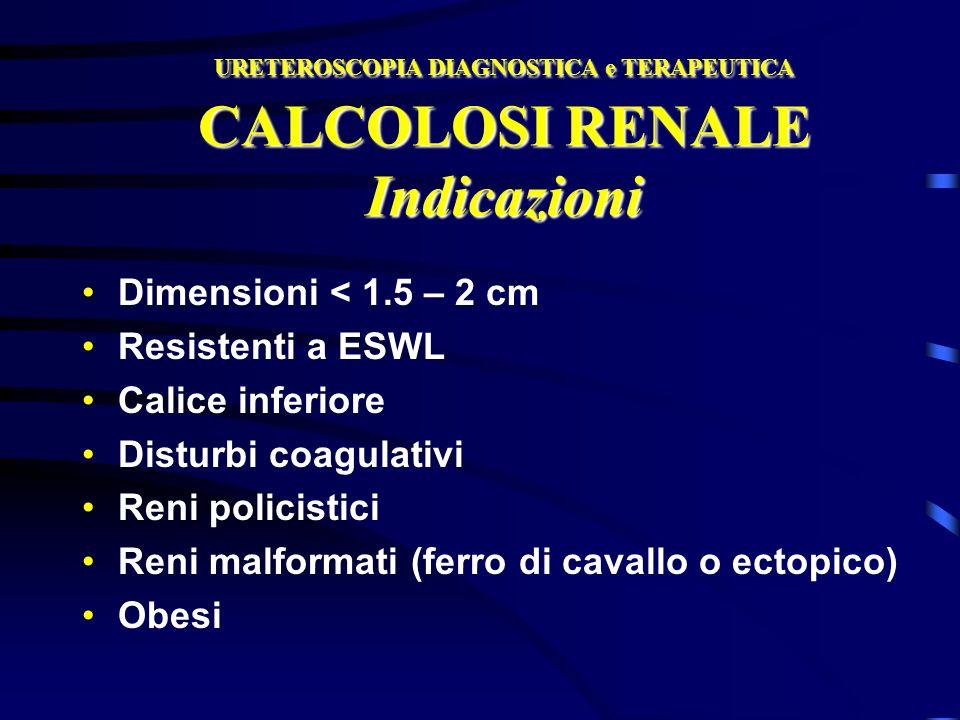 URETEROSCOPIA DIAGNOSTICA e TERAPEUTICA CALCOLOSI RENALE