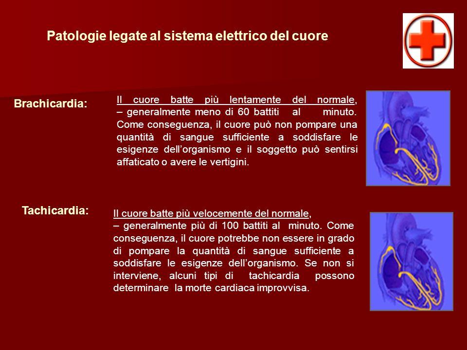 Patologie legate al sistema elettrico del cuore